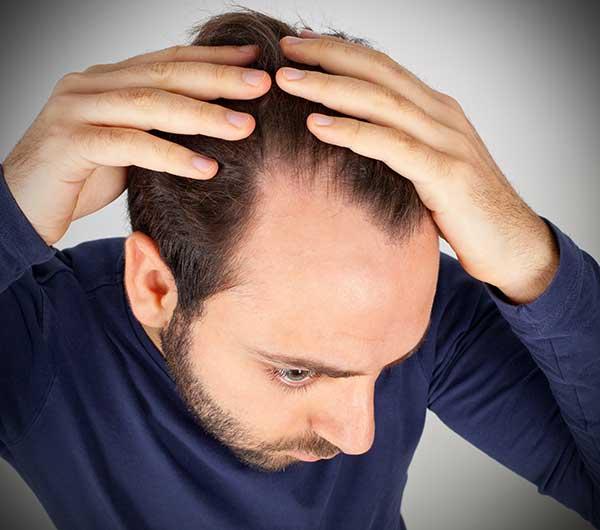 dense_hair