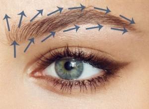 Eyebrow_hair_transplant