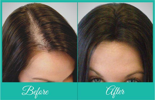 female_hair_transplant_ba