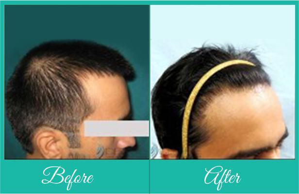 Alopecia doctor in Pune