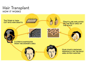 HairTransplant_proce_kr_01