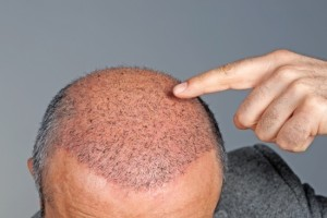 Yes, and for Sure, Hair transplant has been performed since 1900's, that hair transplant is an effective surgical treatment for hair loss. In 2008 there were over 250,000 cases performed globally