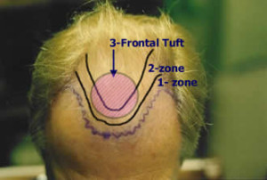 FUE Hair Transplant - What Happen On Your Procedure Day | Dezire Clinic Pune