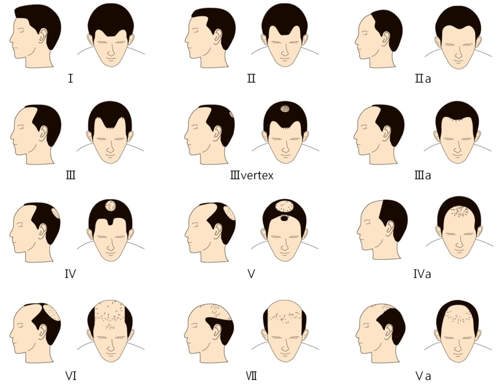 Find the hair loss patterns in Male and understand what yours is like. Find cure for Androgenetic Alopecia (AGA) in Pune at Dezire Clinic with best doctors and proven hair loss treatment. Call us for costing.
