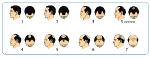 Norwood_pattern_baldness