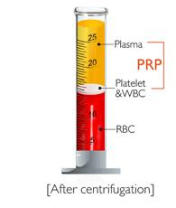 PRP_plate_kr