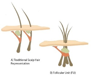 Information Regarding Hair Restoration Procedure And Baldness - What is male pattern / Women Pattern baldness or androgenic alopecia and science behind hair transplant.