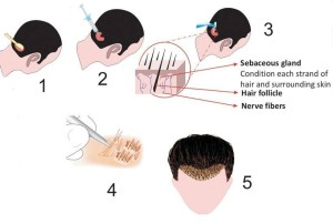 MAX FUE Hair Transplant Technique (Follicular Unit Extraction) in Pune - Cost, Procedure, Results | Dezire Clinic Pune
