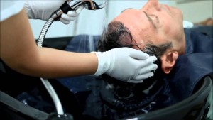 Before FUE Hair Transplant Procedure | Dezire Clinic Pune