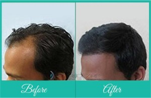 Hair treatments in pune