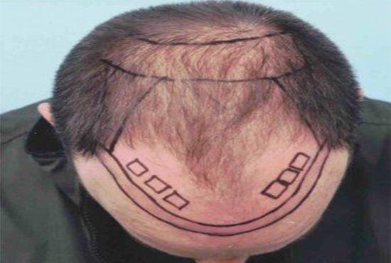 hairline_pune_kr_fnl