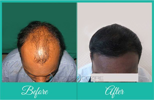 hairtransplant_overview_ba_kr