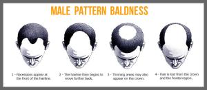 male_bald