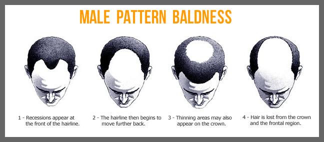 male_bald_kr