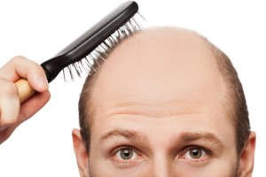 Male Hair Baldness Patterns - AGA: Androgenetic Alopecia Hair Pattern in Men | Dezire Clinic Pune