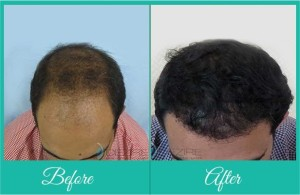 male_hair_loss_ba_kr