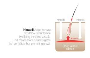 minoxidil_work_kr