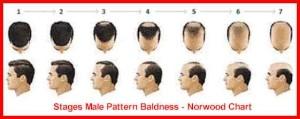 stage_baldness_kr