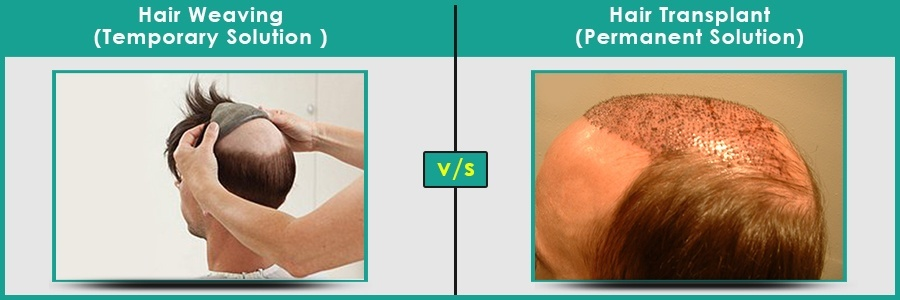Hair Weaving V/S Hair Transplantation in Pune | Dezire Clinic Pune Know what the difference between Hair Weaving & hair transplant is and which solution you must select for your hair loss treatment in Pune.