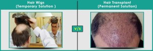 Hair Wigs V/S Hair Transplantation in Pune | Dezire Clinic Pune Know what the difference between Hair Wigs & hair transplant is and which solution you must select for your hair loss treatment in Pune.