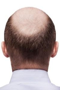 baldness_male_kr
