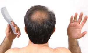 crown hair transplant