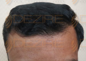 2500 grafts frontal