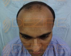 Best Hair Restoration Procedures