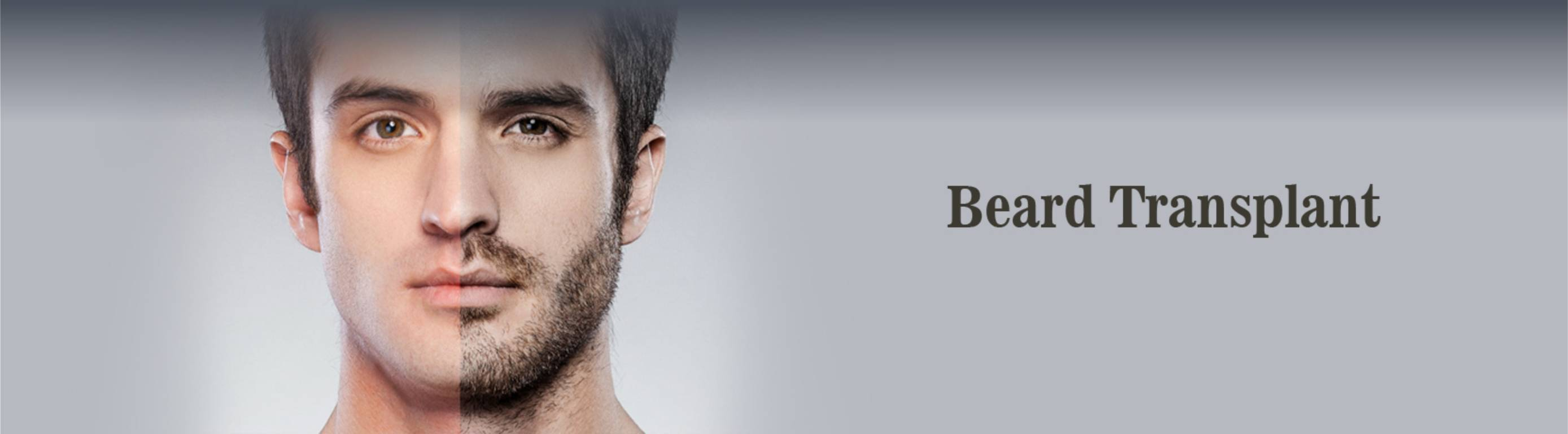 Hair Transplant Recovery done at Dezire Clinic Pune