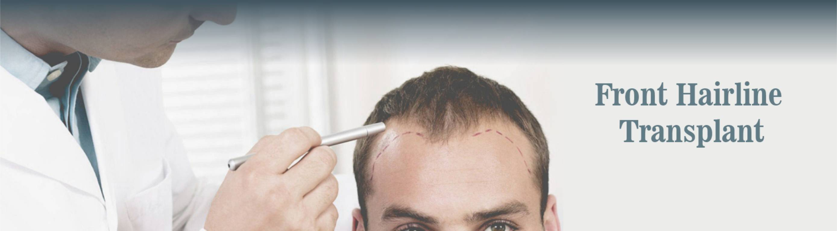 HAIR TRANSPLANT AND RESTORATION DONE AT DEZIRE CLINIC