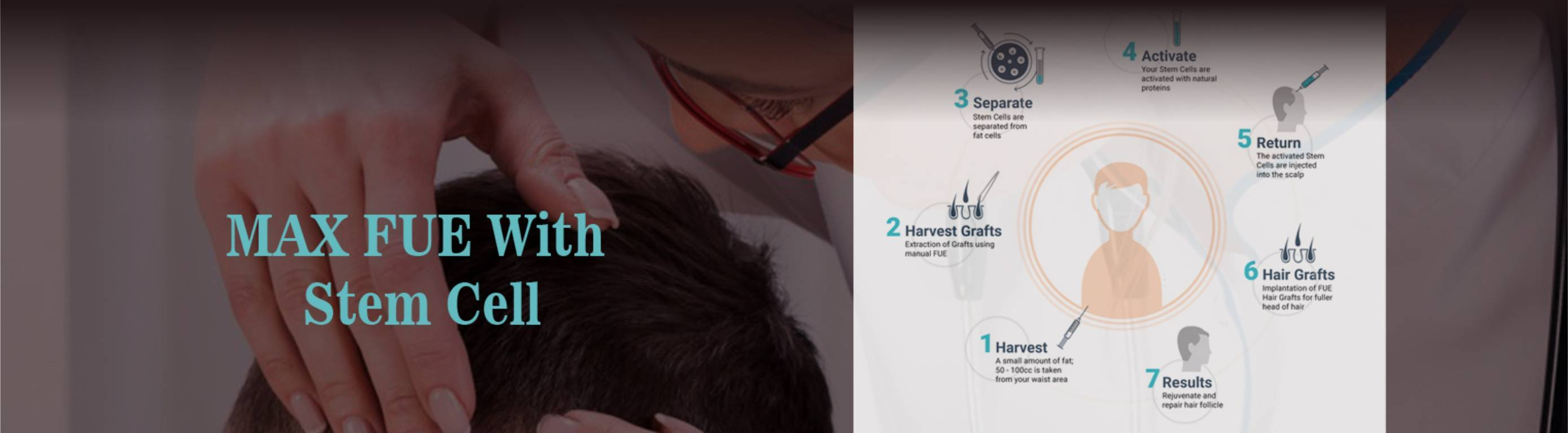 Hair Grafting Procedure done at Dezire Clinic Pune