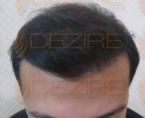 Fut hair transplant cost in Pune in rupees