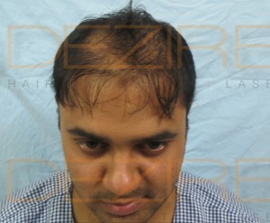 Hair Follicle Replacement