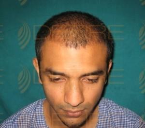 Hair Grafting Procedure