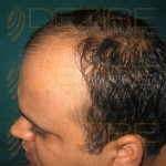 Hair Restoration Doctor in India