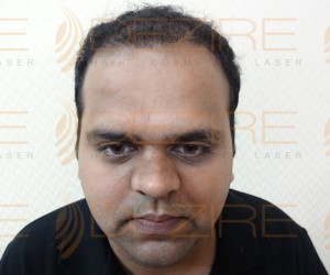 Hair Restoration Physician