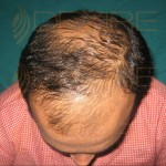 Hair Restoration Surgeon