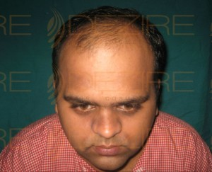 Hair Restoration Surgeon in Pune