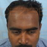 Hair Root Transplant
