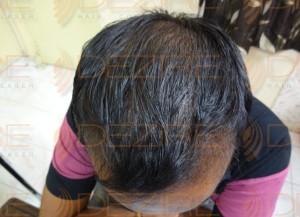 Hair Transplant Best Results