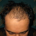 Hair Transplant Details