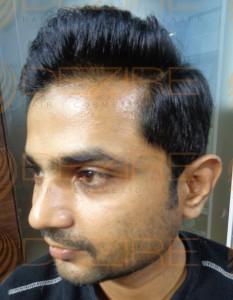 Hair Transplant Methods