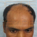 Hair Transplant Steps