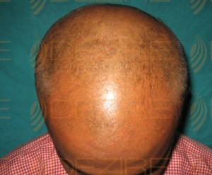 How Much PRP Hair Transplant