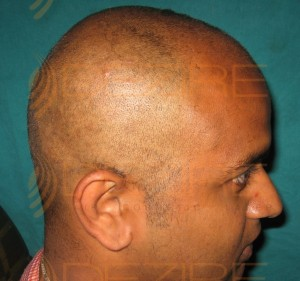 How money fut Hair Transplant
