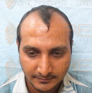 Latest Hair Transplant Techniques