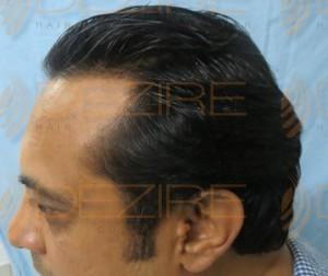 Mens Hair Surgery Pain full