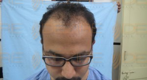 Permanent Hair Replacement