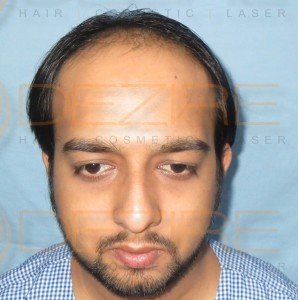 Real Hair Transplant Results