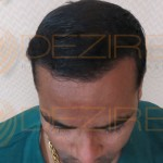 Restore Hair Treatment low cost